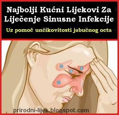 liječenje sinusa
